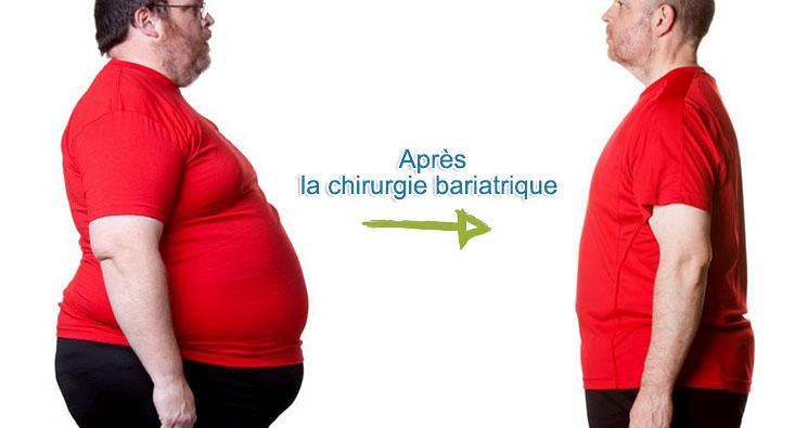 apres chirurgie bariatrique tunisie