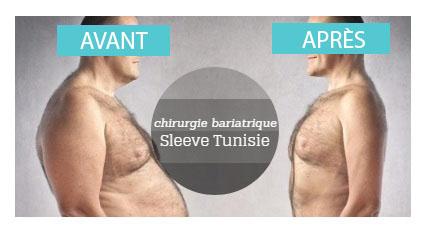 avant apres sleeve gastrectomie tunisie