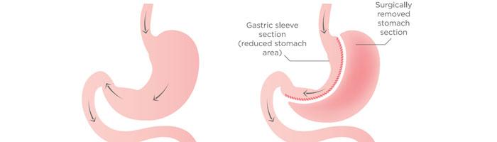 sleeve gastrique avant apres