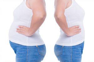 apres chirurgie obesite tunisie