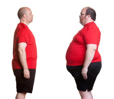 avant apres chirurgie obesite tunisie