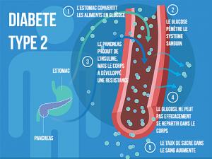 diabete type 2