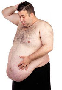 chirurgie obesite morbide tunis