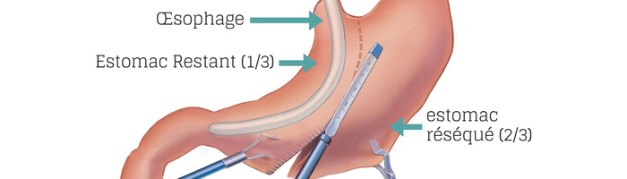 sleeve gastrectomie en tunisie